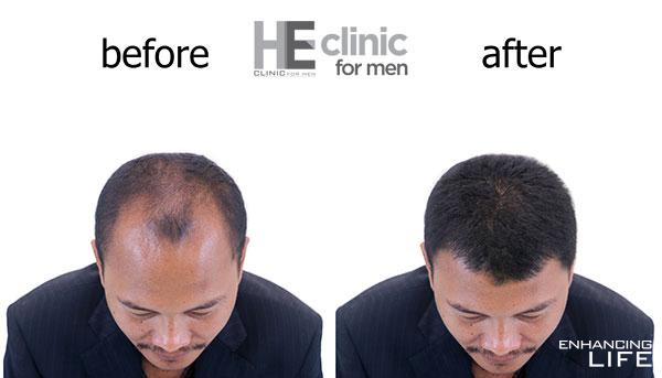 FUE hair loss treatment in Bangkok