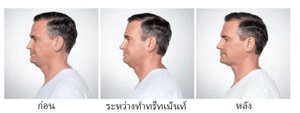 chin fat removal bangkok