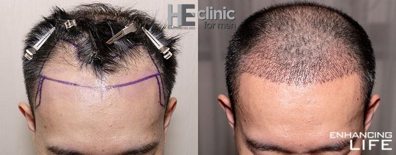 FUE hair loss treatment at HE Clinic Bangkok